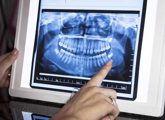 Why Might Dental X Rays Be Needed