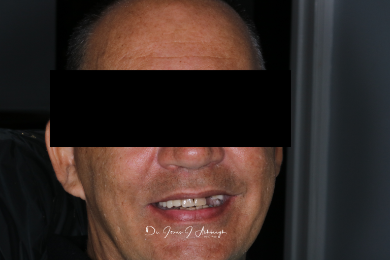 Full Face Before Dental implants and crowns